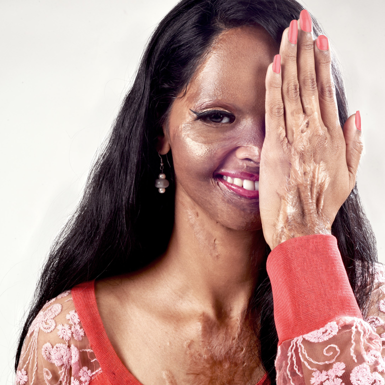 acid attack niraj gera photography
