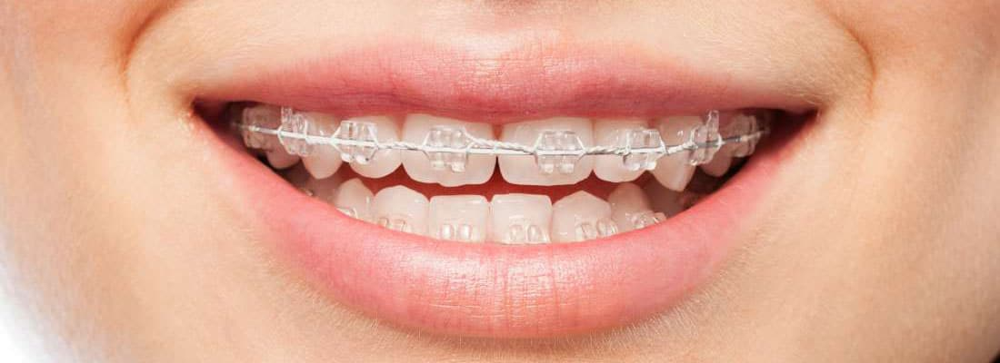 Tips From An Expert Orthodontiste To Get The Most Out Of Your Orthodontic Treatment