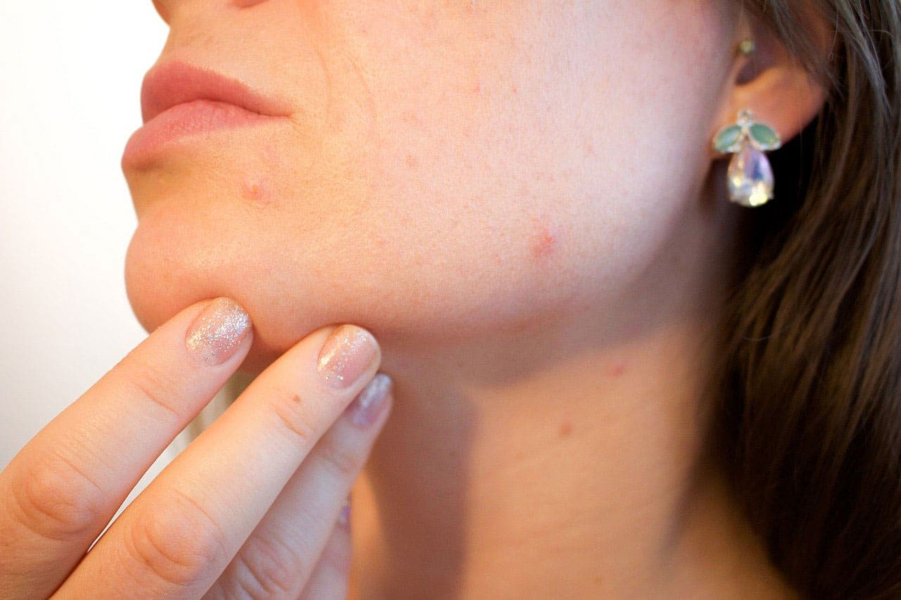 Zap Those Zits By Properly Using An Acne Patch